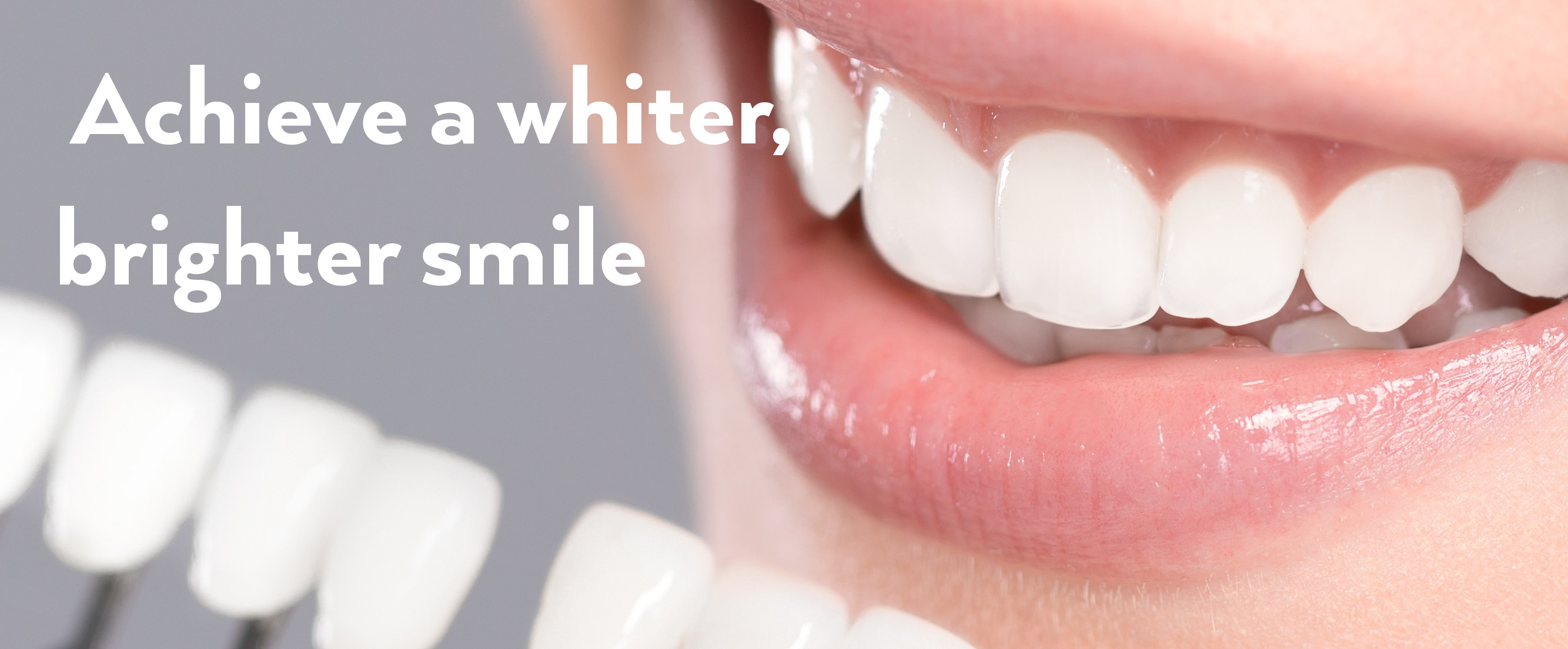 Teeth Whitening, Bromsgrove
